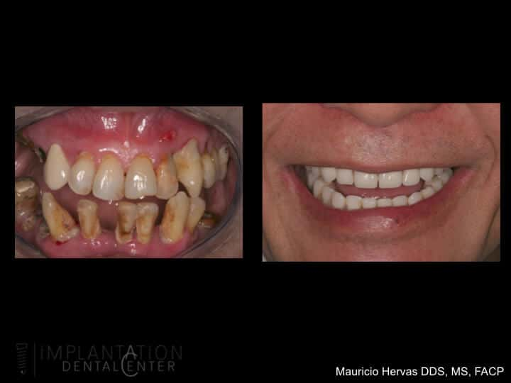 Missing Teeth - Before and After Dental Implants - Dr. Hervas
