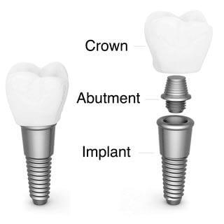 , A single tooth replacement in one day?, Implantation Dental Center