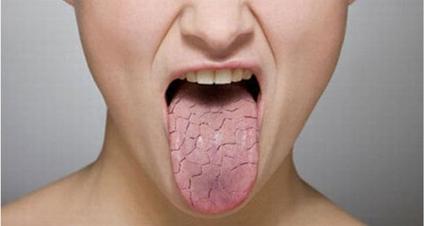 , Dry mouth? Let's talk about it., Implantation Dental Center