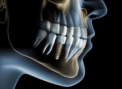 , Are dental implants right for you?, Implantation Dental Center