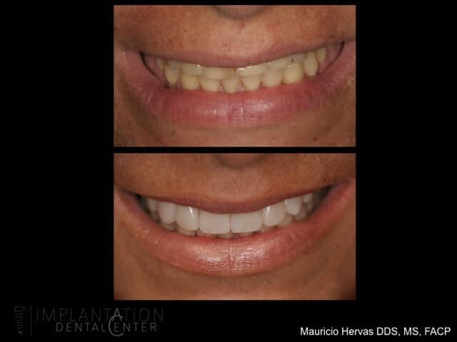 Plantation, Florida Dental Implant Specialist Dr. Mauricio Hervas