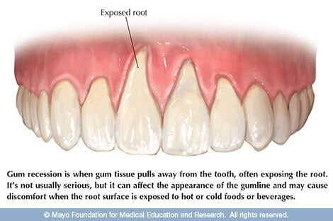 Gum Recession Causes and Treatment