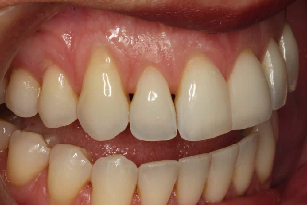 , Black Triangles: What are the dark spaces between your teeth?, Implantation Dental Center