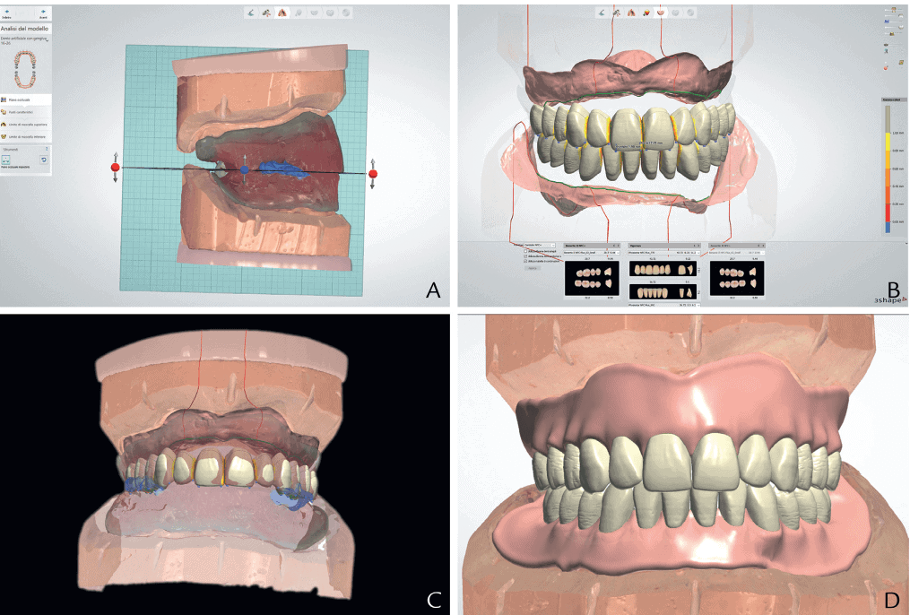 Digital Dentures Implantation Dental Center