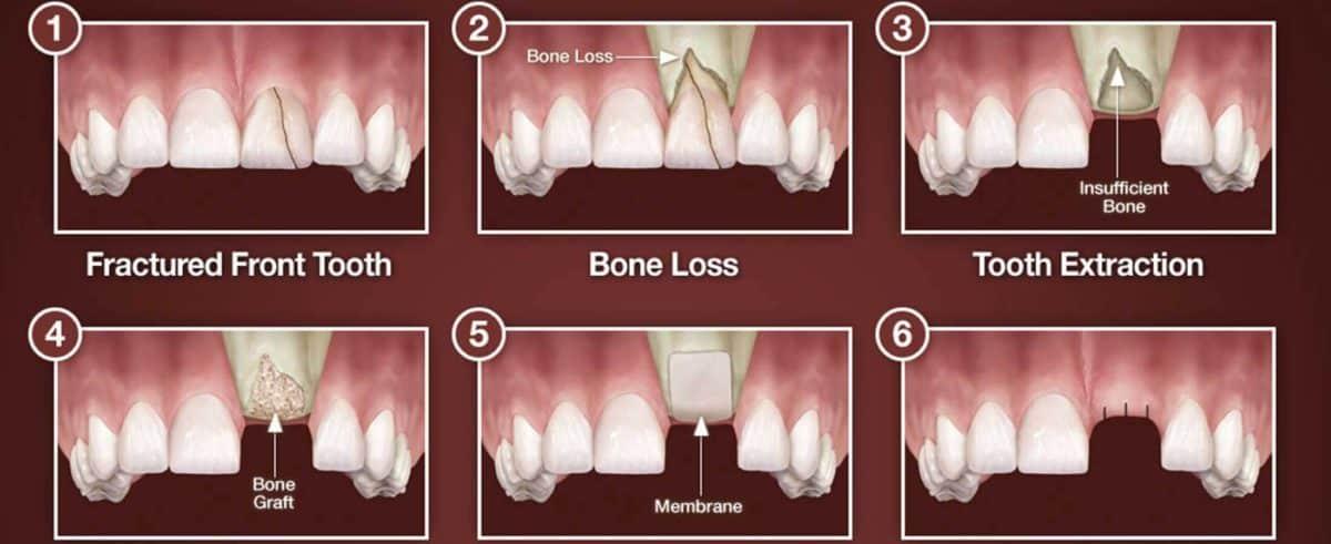 , 3 Myths About Dental Bone Grafting, Implantation Dental Center