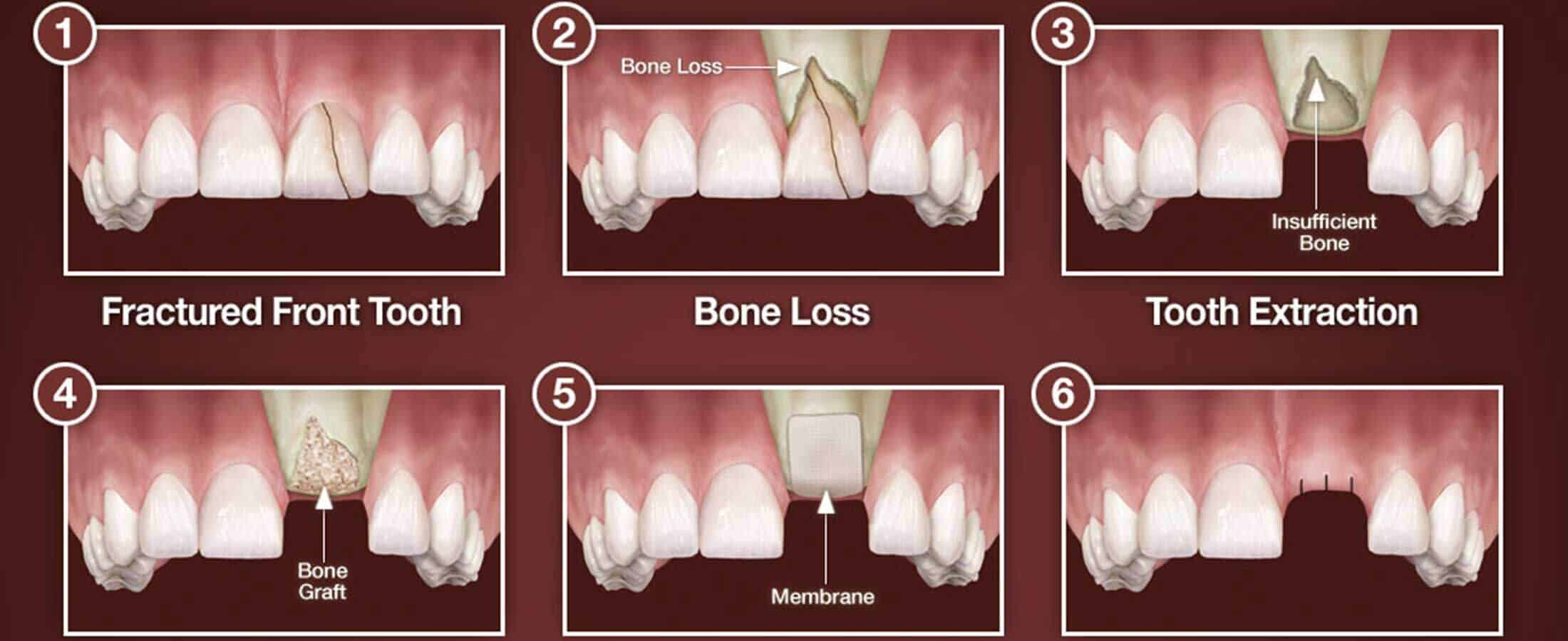 3 Myths About Dental Bone Grafting Implantation Dental Center Blog