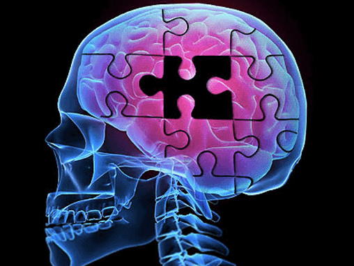 Alzheimer's linked to periodontal disease