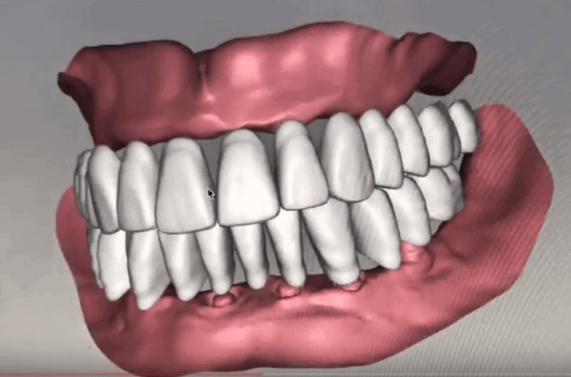 , Amazing 3-D Denture Technology, Implantation Dental Center