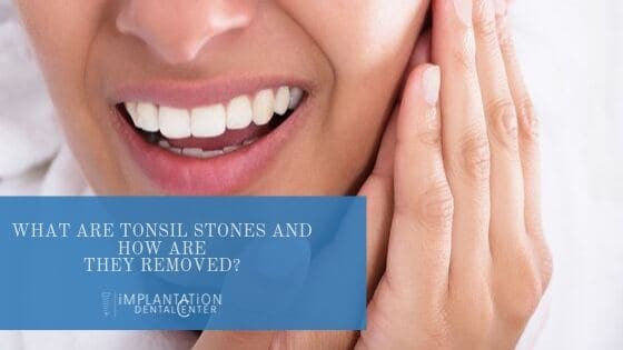 What are tonsil stones and how are they removed_