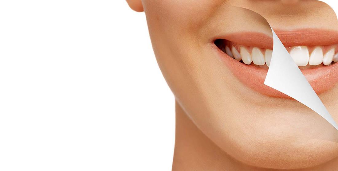 Implantation Dental Center - Dental Implants