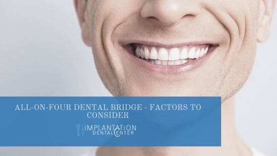 all on four dental bridge